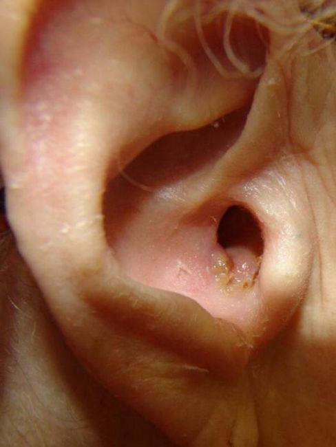 inflamația urechilor