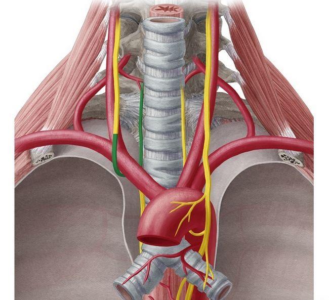 Stâng nervul gutural recurent