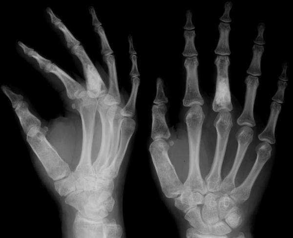 dislocarea unei îmbinări cu degetul unei mâini