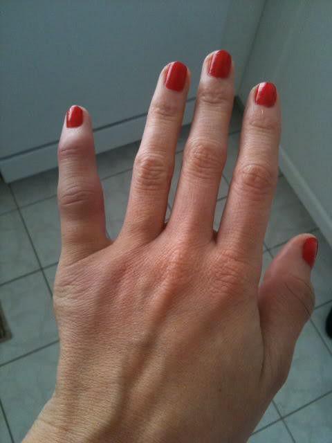 dislocarea degetului pe mâna ce trebuie făcut
