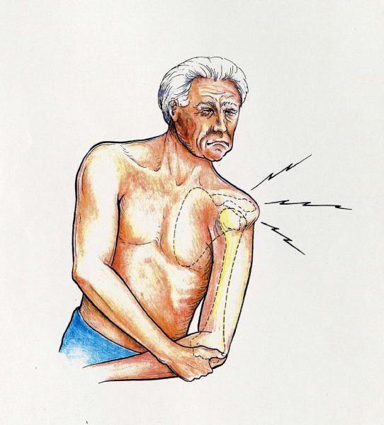 dislocarea tratamentului articulației umărului la domiciliu