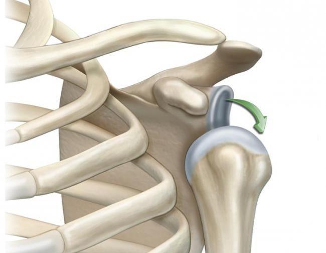 dislocarea articulației umărului