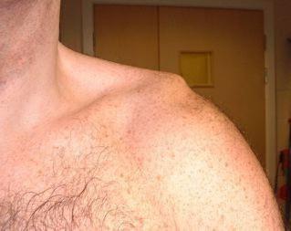 dislocarea simptomelor umărului de prevenire și tratament al bolii