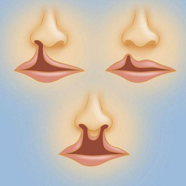 заячья губа у детей причины