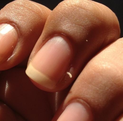 Burru pe degete: cauze și tratament