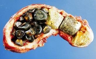 diete în boli