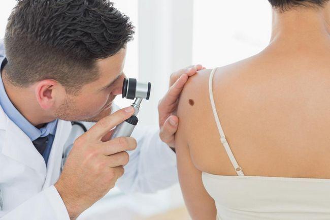 O tumoare malignă este un cancer sau nu